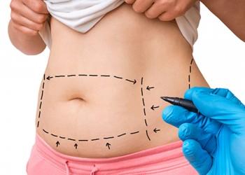 Karın Germe Ameliyatı Yapılmadan Önce Nelere Dikkat Edilmelidir?