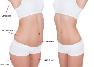 Liposuction Yağ Aldırma